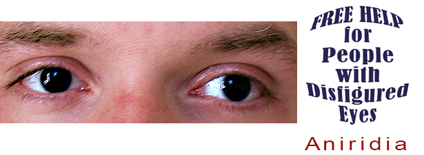aniridia-disfigured-eye-help