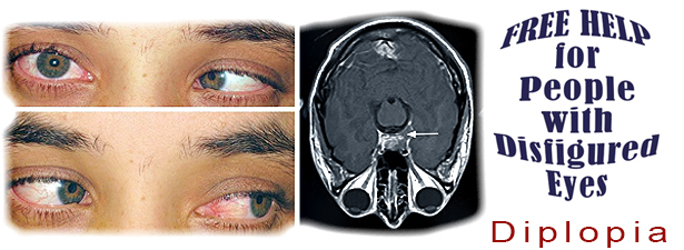 diplopia-disfigured-eye-help