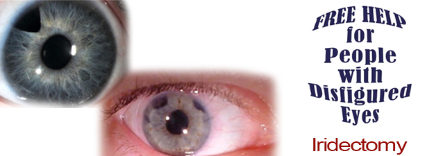 iridectomy-disfigured-eye-help