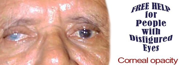 corneal-opacity-disfigured-eye-help