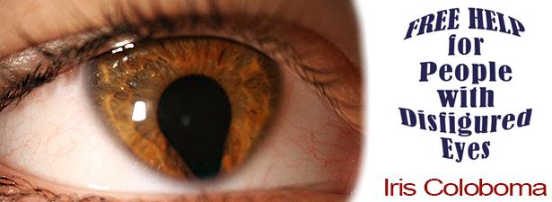 iris-coloboma-disfigured-eye-help