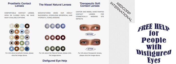 3-options-for-disfigured-eye_medcorp-video